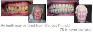 Implants Before & After
